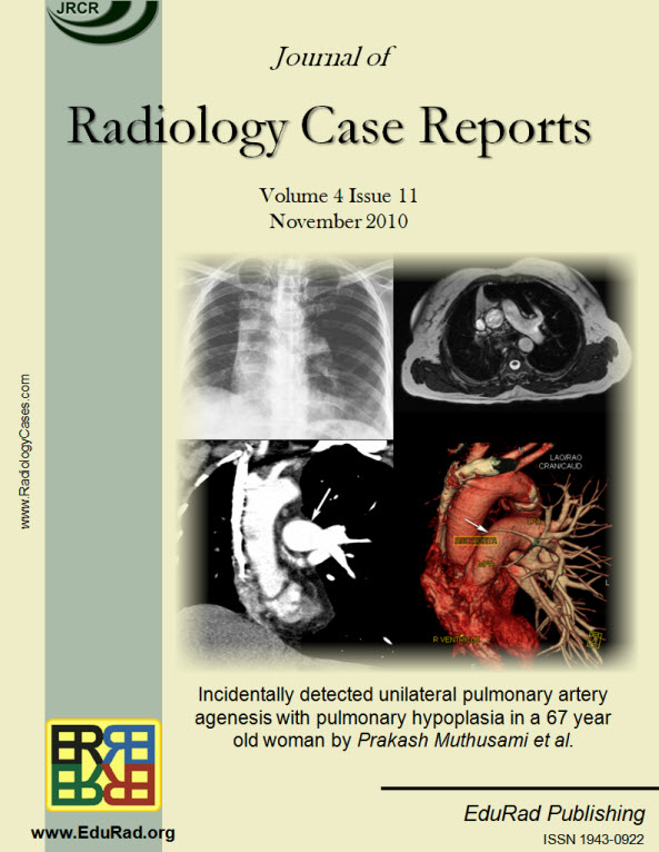 Journal of Radiology Case Reports November 2010 issue. Incidentally detected unilateral pulmonary artery agenesis with pulmonary hypoplasia in a 67 year old woman by Prakash Muthusami et al.