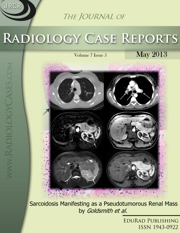 Journal of Radiology Case Reports May 2013 issue - Cover page: Sarcoidosis Manifesting as a Pseudotumorous Renal Mass by Goldsmith et al.