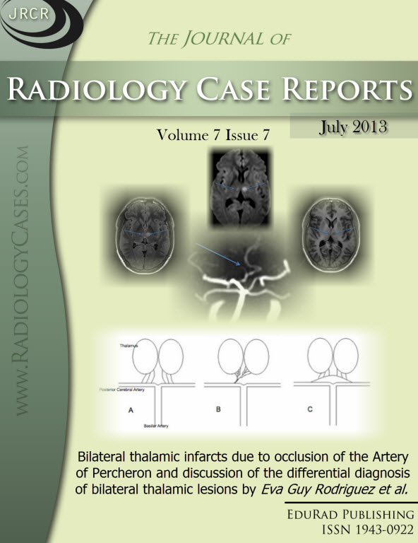 Journal of Radiology Case Reports July 2013 issue - Cover page: Bilateral thalamic infarcts due to occlusion of the Artery of Percheron and discussion of the differential diagnosis of bilateral thalamic lesions by Eva Guy Rodriguez et al.