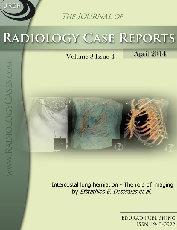 Journal of Radiology Case Reports April 2014 issue - Cover page: Intercostal lung herniation - The role of imaging by Efstathios E. Detorakis et al.