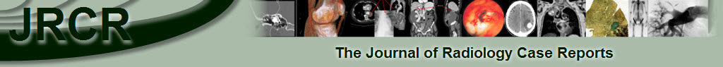 Journal of Radiology Case Reports: The interactive Radiology case reports journal