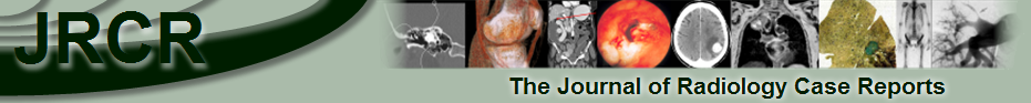 Journal of Radiology case reports and Radiology review articles is a new concept of interactive Radiology journals