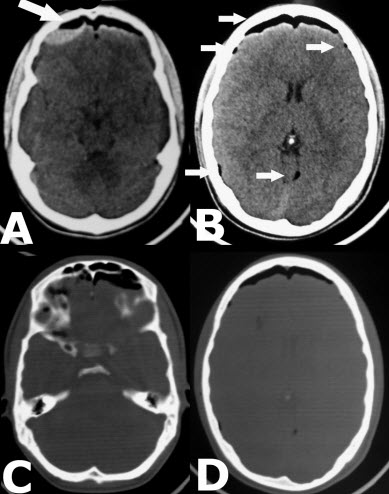 Mount Fuji sign with concavo-convex appearance of epidural haematoma in a patient with tension pneumocephalus