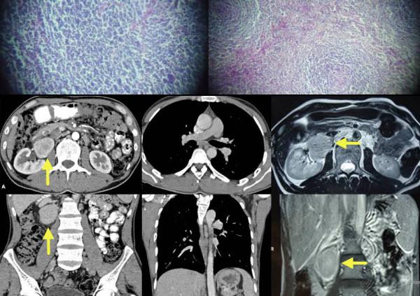 Unicentric Castleman's Disease of Abdomen