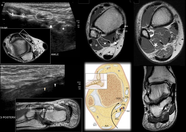 An Accessory Peroneocalcaneus Internus Muscle with MRI and US Correlation