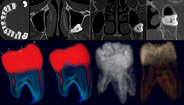Anomalous Morphology of an Ectopic Tooth in the Maxillary Sinus on Three-Dimensional Computed Tomography Images