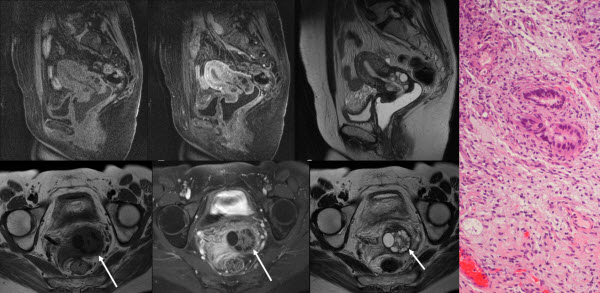 Adenoma Malignum Detected on a Trauma CT