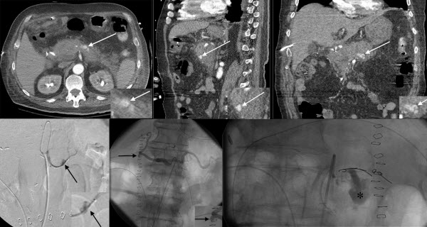 Post-Pancreaticoduodenectomy Hemorrhage of Unusual Origin: Treatment with Endovascular Embolization and the value of preoperative CT Angiography