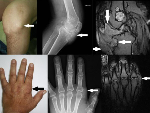 A rare case of Enchondromatosis of the knees and hands with involvement of Hoffa's fat pad and peri-articular soft-tissues