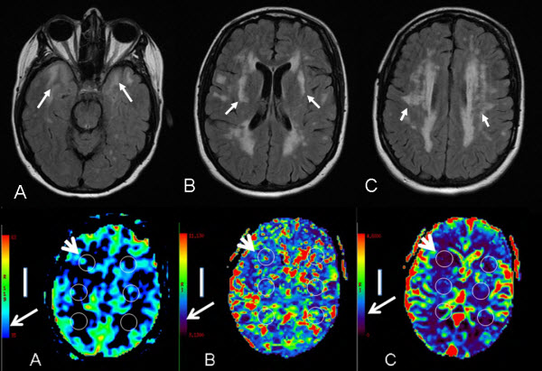 Acute Watershed Infarcts with Global Cerebral Hypoperfusion in Symptomatic CADASIL
