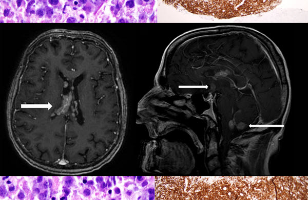 A Case of Intraventricular Primary Central Nervous System Lymphoma