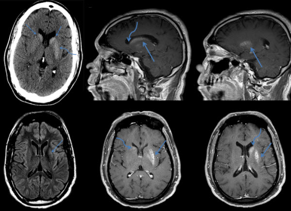 Classic neuroimaging findings of nonketotic hyperglycemia on computed tomography and magnetic resonance imaging with absence of typical movement disorder symptoms (hemichorea-hemiballism)