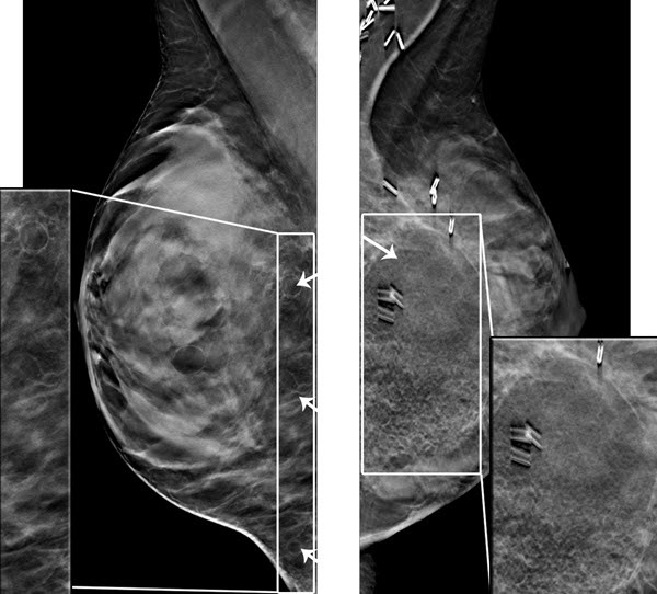Digital Breast Tomosynthesis Findings after Surgical Lipomodeling in a Breast Cancer Survivor