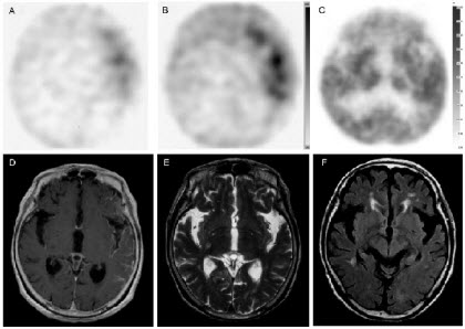 Detection of neoplastic meningitis in a patient with gastric cancer by thallium-201 SPECT