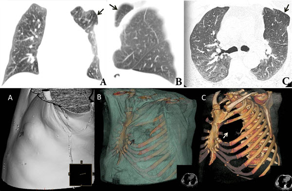 Intercostal lung herniation - The role of imaging