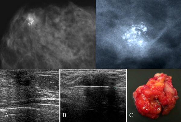 Pilomatrixoma of the breast, a rare lesion simulating breast cancer: a case report