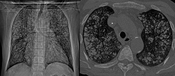Metastatic Pulmonary Calcification in a Patient with Chronic Renal Failure