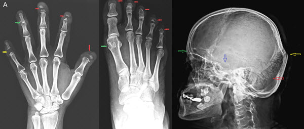 Hajdu-Cheney Syndrome: A case report with review of literature