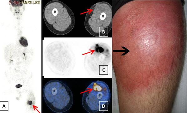 Anaplastic Cutaneous Lymphoma Mimicking an Infection