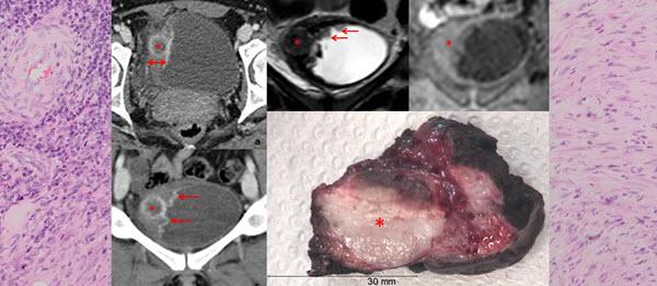 Inflammatory Pseudotumor of the Urinary Bladder