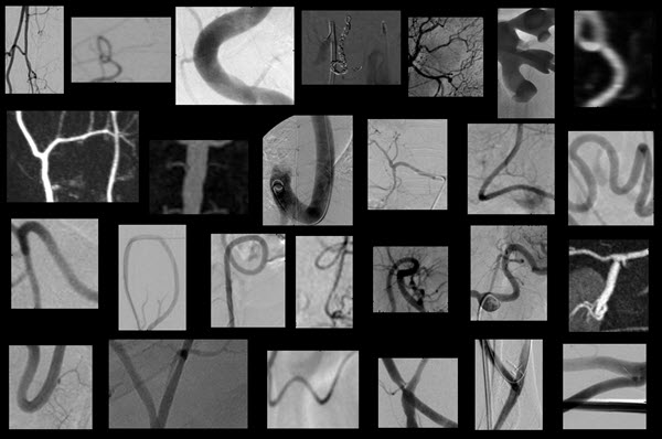 A to Z of interventional radiology