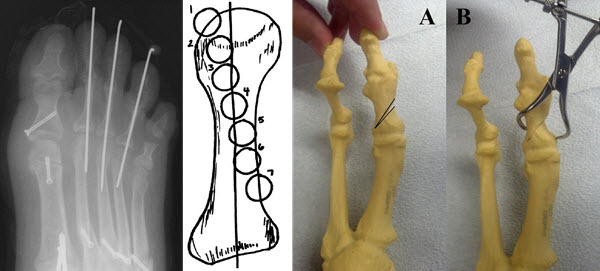 A pictorial review of reconstructive foot and ankle surgery: hallux abductovalgus