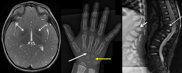 Skeletal and Brain Abnormalities in Fucosidosis, a Rare Lysosomal Storage Disorder