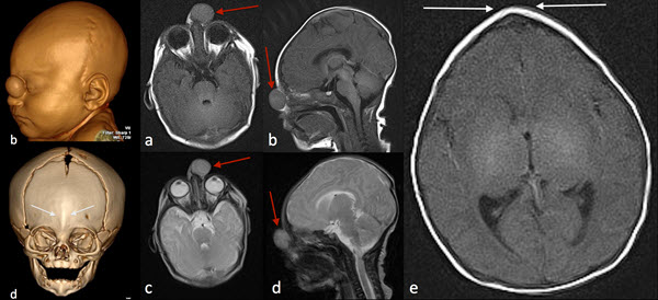 Prenatal Diagnosis of Nasal Glioma Associated with Metopic Craniosynostosis: Case Report and Review of the Literature