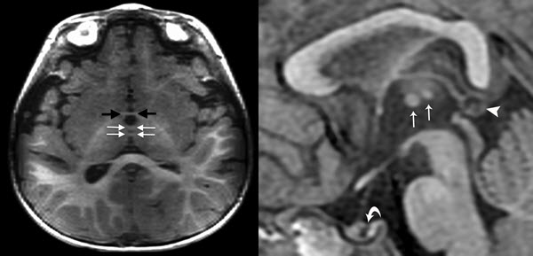 Thalamic Massa Intermedia Duplication in a Dysmorphic 14 month-old Toddler