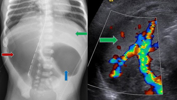 Situs Ambiguous, Levocardia, Right Sided Stomach, Obstructing Duodenal Web, and Intestinal Nonrotation: A Case Report