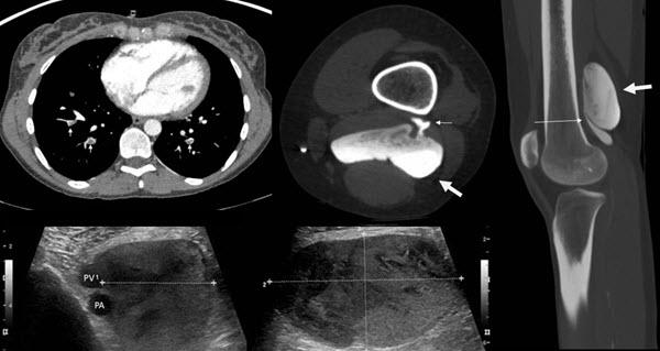 Popliteal vein aneurysm presenting as recurrent pulmonary embolism