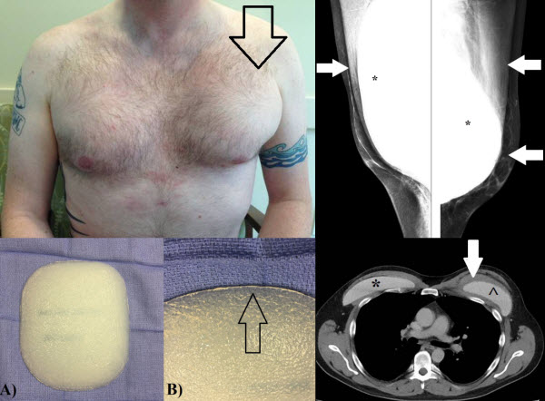Male Pectoral Implants: Radiographic Appearance of Complications