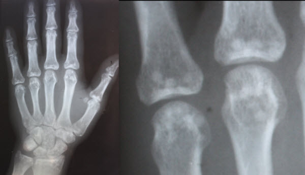 Osteopoikilosis: a case report of a symptomatic patient