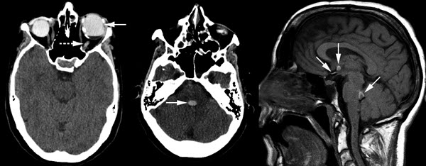 Intracranial Migration of Silicone Delaying Life Saving Surgical Management: A Mimicker of Hemorrhage