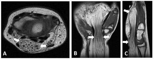 Lipofibromatous Hamartoma of the Median Nerve: A Case Report