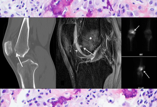 Intra-articular osteoid osteoma at the femoral trochlea treated with osteochondral autograft transplantation
