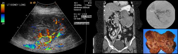 Renal neuroectodermal tumour presenting with hematuria