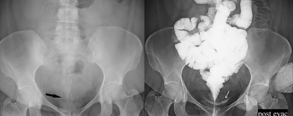 Vicarious urinary excretion of iodinated contrast in a Crohn's patient