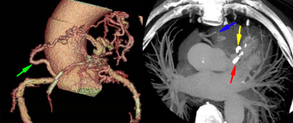 Coronary arteriovenous malformation, as imaged with cardiac computed tomography angiography: A case series