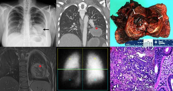 The Radiologic and Pathologic Diagnosis of Biphasic Pulmonary Blastoma