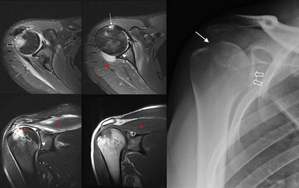 Glenohumeral Joint Sepsis after Joint Injection through a New Tattoo