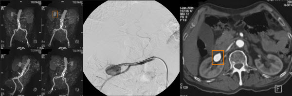 Stent-assisted coil embolization of a wide-necked renal artery aneurysm
