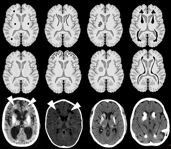 Intracranial calcifications on CT: an updated review