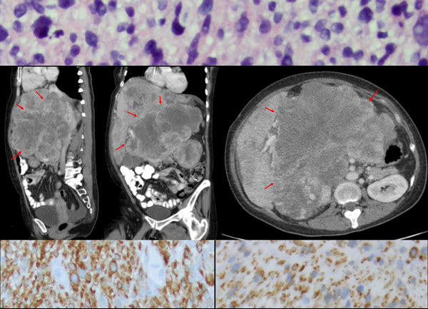 Leiomyosarcoma of the Inferior Vena Cava with Hepatic and Pulmonary Metastases: Case Report