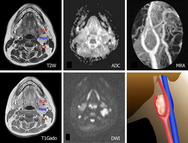 Carotid body tumor: a case report and literature review