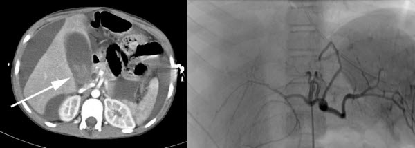 Blunt abdominal trauma - An important cause of portal venous pseuodoaneurysm