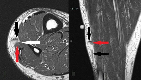 Superficial peroneal nerve compression due to peroneus brevis muscle herniation