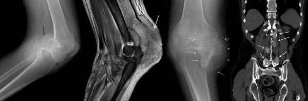 Spondyloarthritis: A Gouty Display
