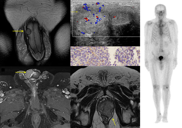 Solitary metastasis to the penis from prostate adenocarcinoma - a case report
