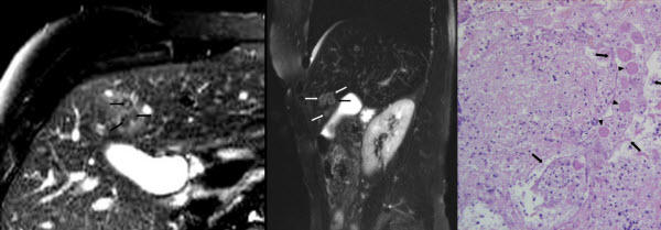 Fasciola hepatica infection in a 65-year-old woman